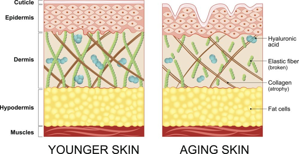Tretinoin collagen production and skin care